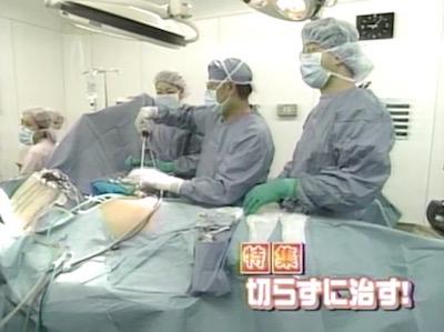 日帰り腹腔鏡手術