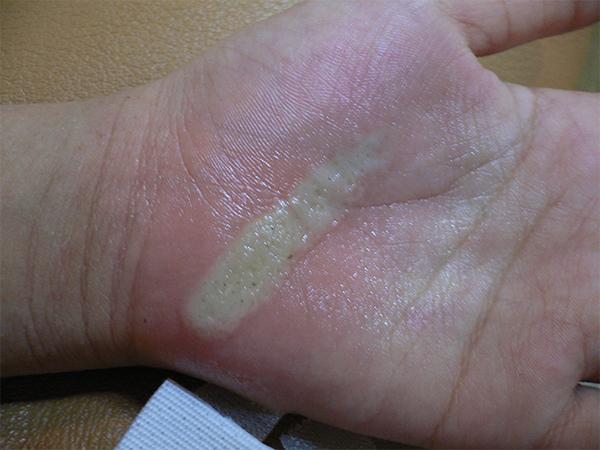 火傷の治療(手)